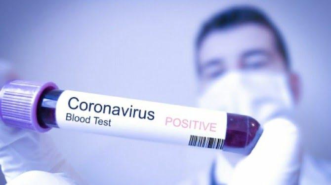 Virus Corona/Covid-19 (Ilustrasi).